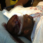Chris Brown bodyguard fight injury