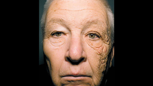 Trucker with sun damaged face